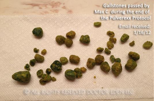 Pulverized Gallstones Max C
