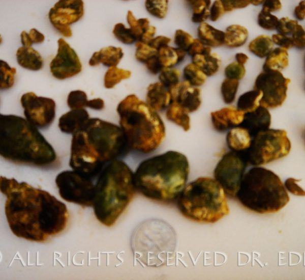 Gallstone Pictures Gallery | See Images of Real Gallstones ...