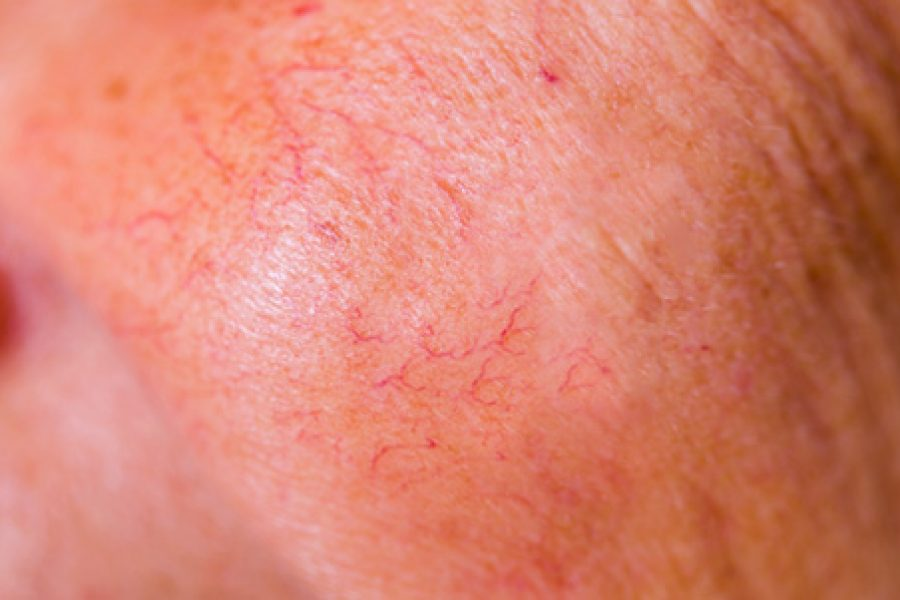 Facial Capillaries Could Be a Signal of Fatty Liver