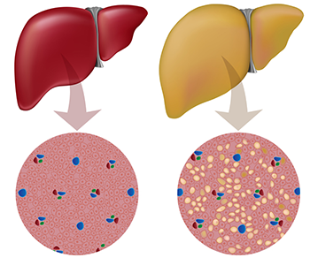 Fatty Liver Detox