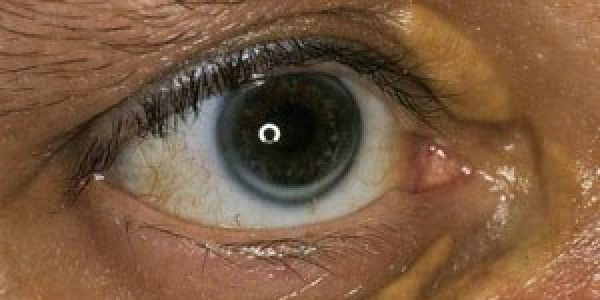 Bigger deposits of Fatty Tissue Around The Eyes