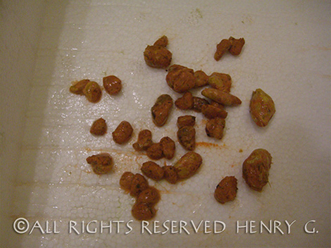 Gallstones passed by Henry G