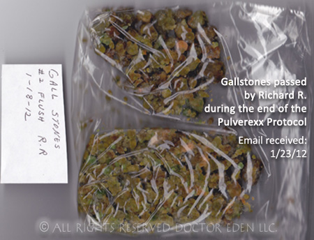 Gallstones passed by Richard R