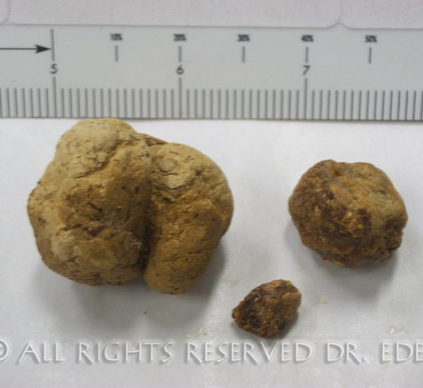 Gallstones and sludge image 18