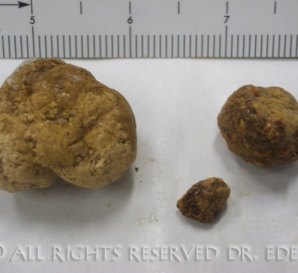 Gallstones and sludge image 19