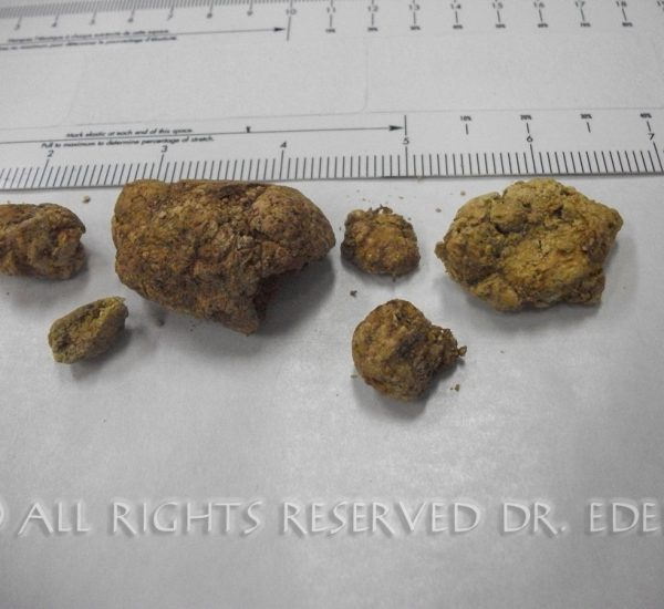 Gallstone and sludge image 05