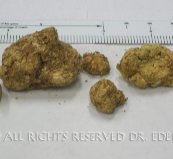 Gallstones and sludge image 06