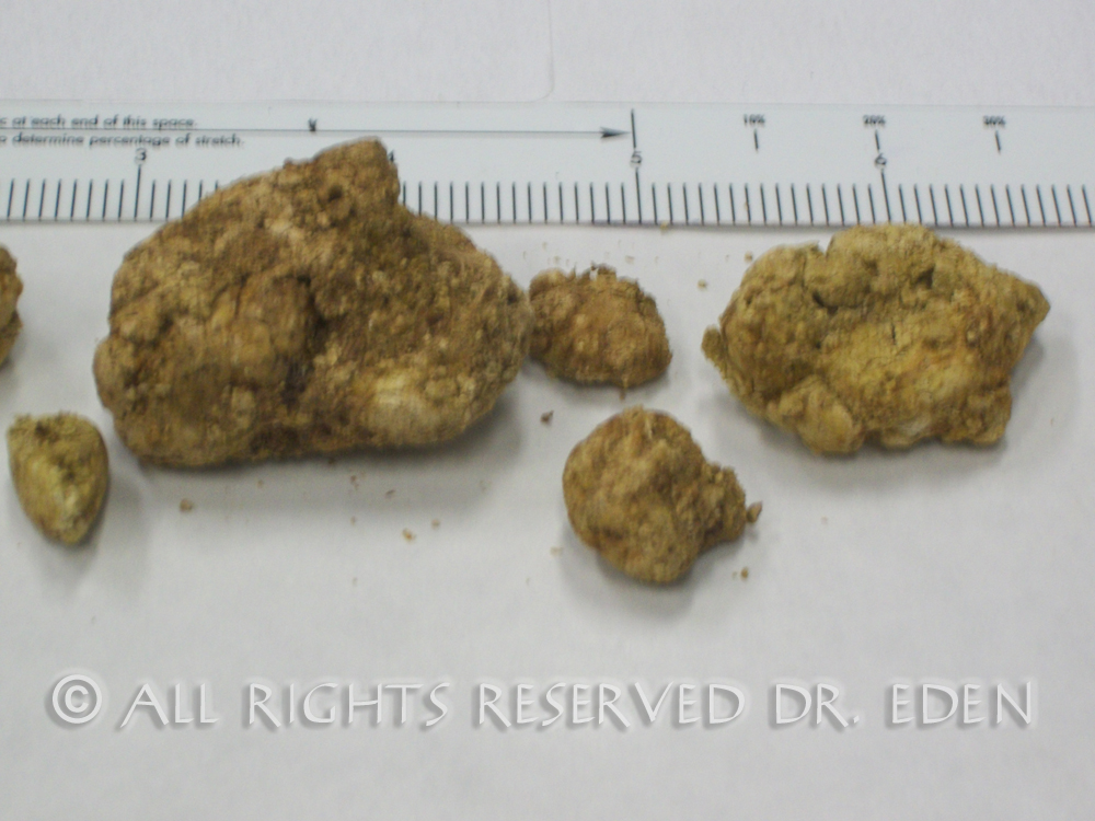 Gallstones  A Cause of Elevated Liver Enzymes