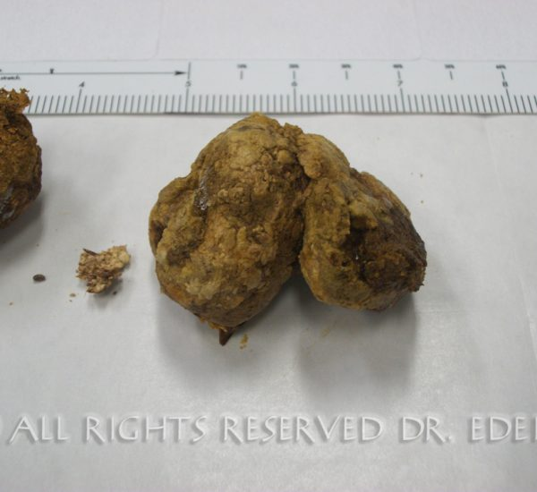 Gallstone and sludge image 07