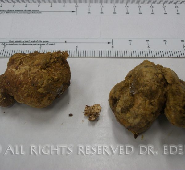 Gallstones and sludge image 08