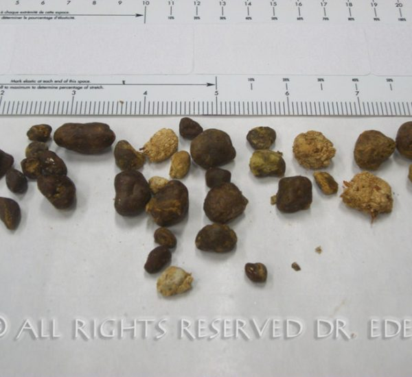 Gallstones and sludge image 15