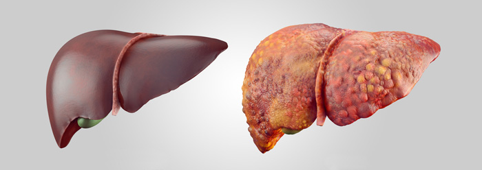 Healthy Liver and Damaged Liver