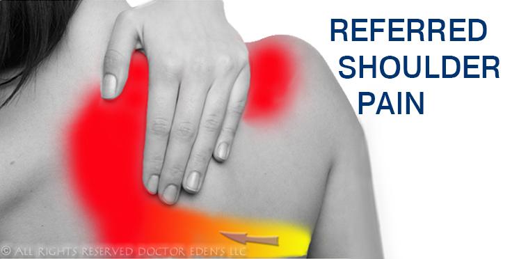 Gallbladder Symptoms | Referred Shoulder Pain