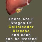 Gallbladder Treatment