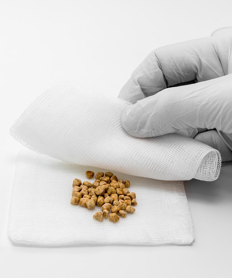 Do Gallstones Cause Gallbladder Symptoms?